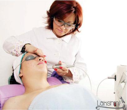 Tratamiento-del-Acné-con-Laser-Nd-yag-pulso-Largo