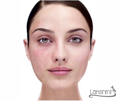 rosacea-medicina-fotonica